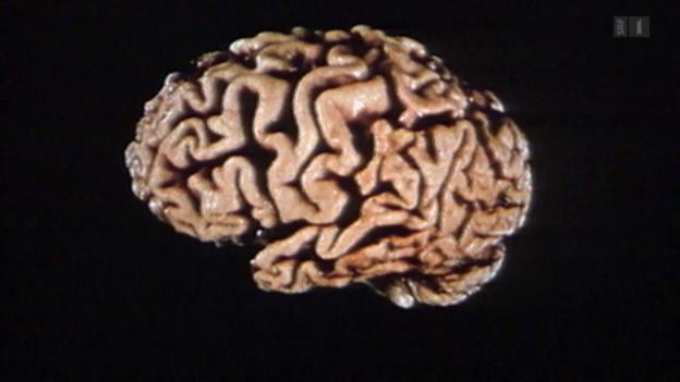 Video «Alzheimer-Forschung am Scheideweg» abspielen