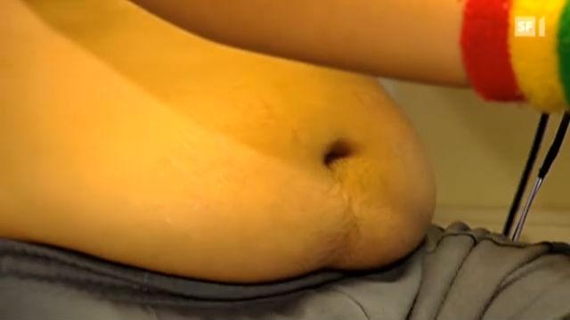 Gesund trotz Übergewicht