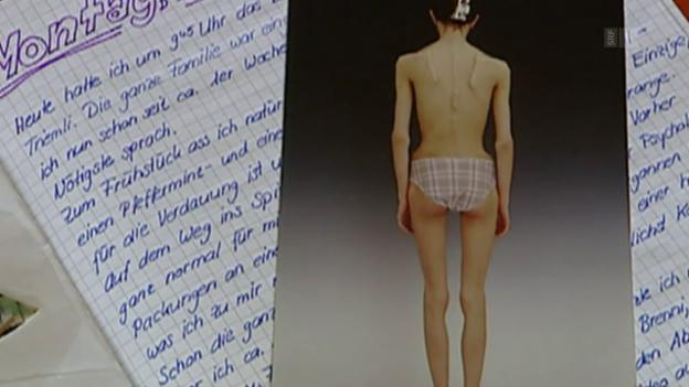 Video «Hirnsonde gegen Magersucht» abspielen