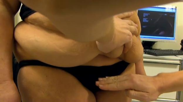 Video «Abgenommen nach Magenbypass – doch häufig bleiben störende Hautlappen zurück» abspielen