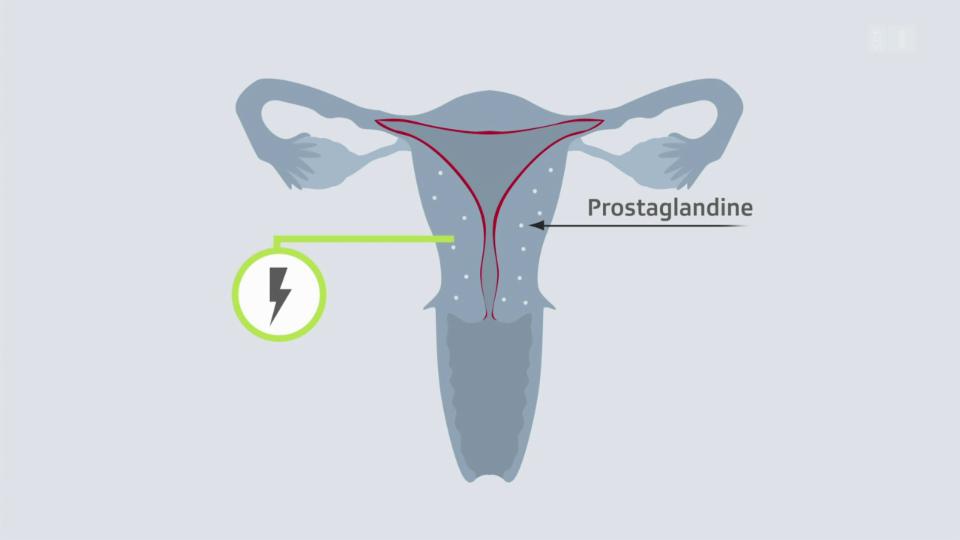 Wie es zu Menstruations-Schmerzen kommt