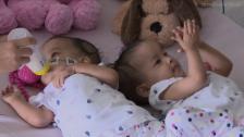 Link öffnet eine Lightbox. Video Siamesische Zwillinge in Melbourne getrennt abspielen