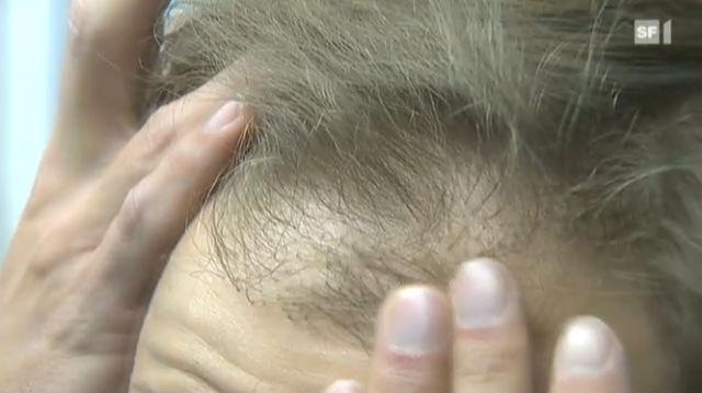 Gegen die Glatze gibt's keine Wundermittel