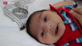 Video «FOKUS: WHO ruft Zika-Gesundheitsnotstand aus» abspielen