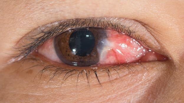 Augennotfall – Für Laien nur schwer einzuschätzen