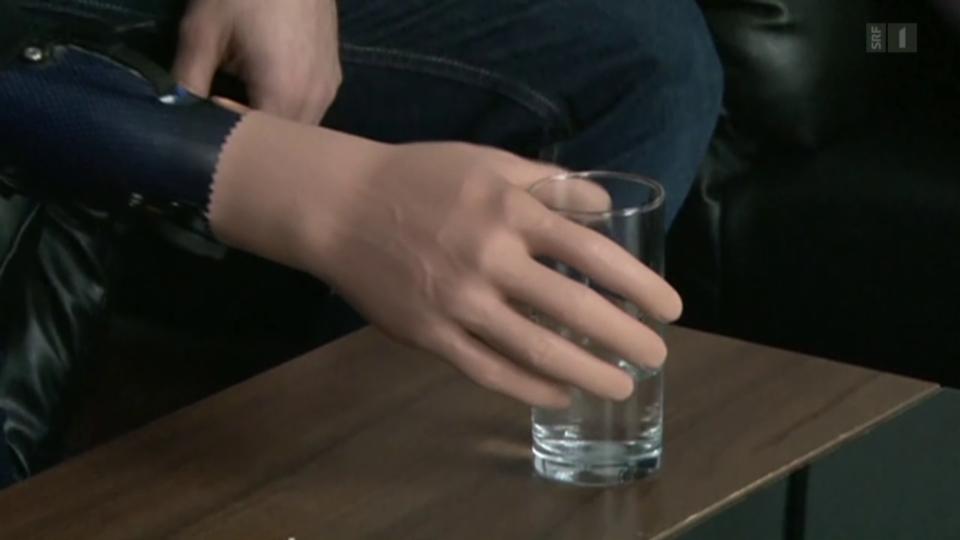 Bionische Handprothese
