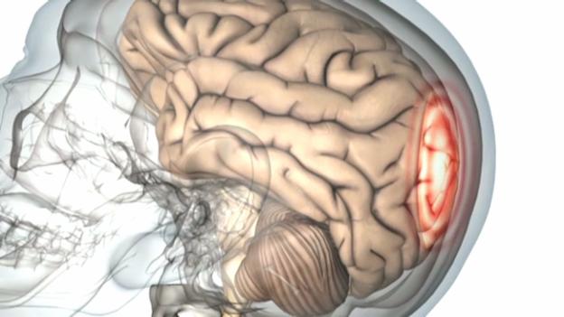 Video «Gehirnerschütterung - Diagnose schwierig, Therapie wichtig» abspielen