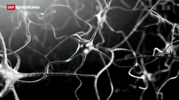 Video «Eine Milliarde für Schweizer Hirnforscher» abspielen