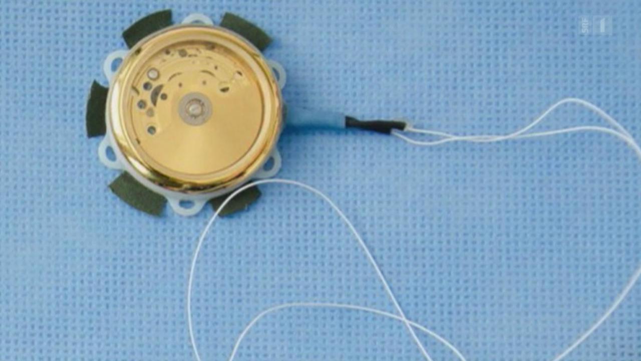 Herzschrittmacher ohne Batterie
