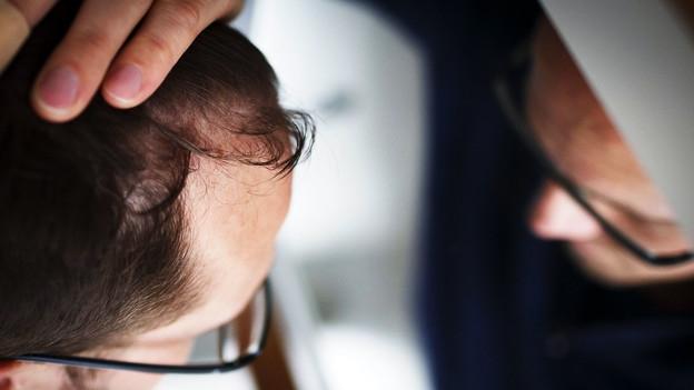 Haarausfall – Machen Anti-Glatzen-Mittel impotent?