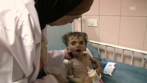 Video «Das Schicksal der eineinhalbjährigen Noor» abspielen