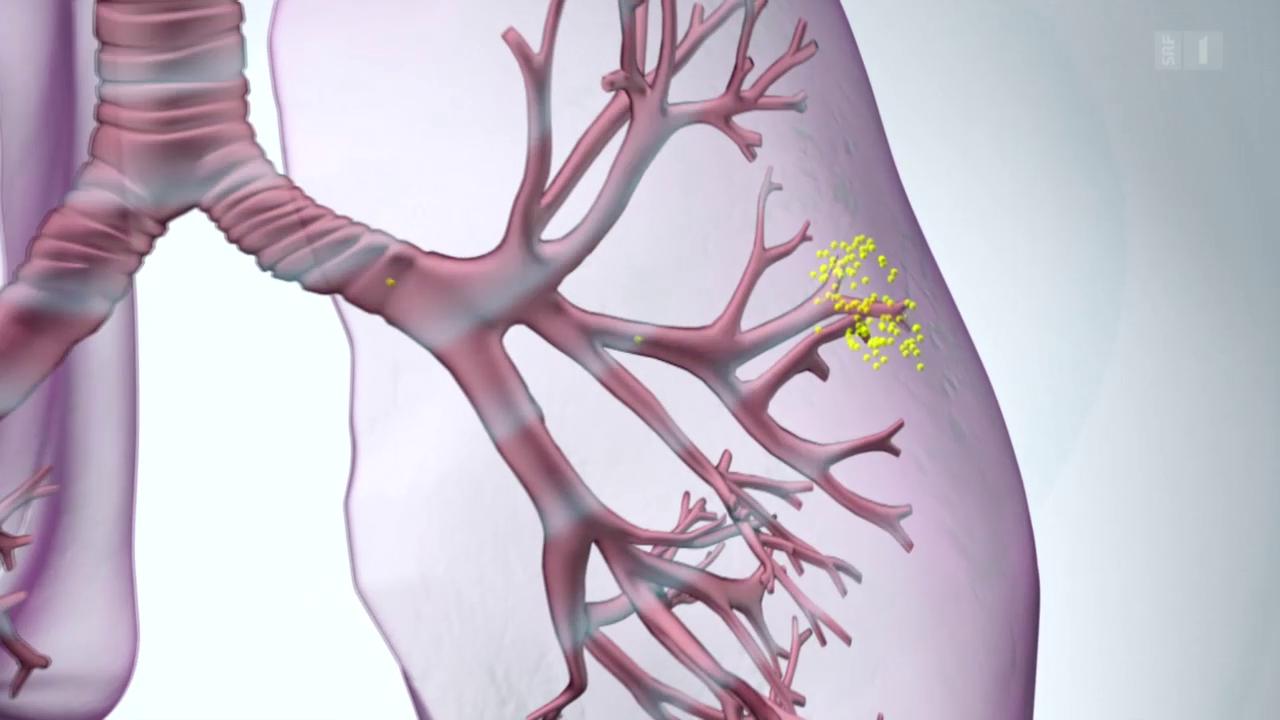 Lungenentzündungen schneller heilen