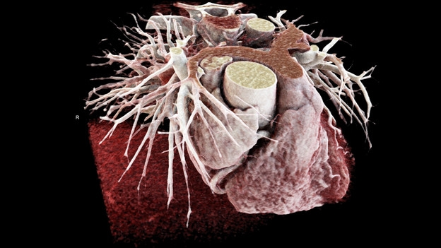 Blick ins Herz – Kardio-CT statt invasivem Herz-Katheter