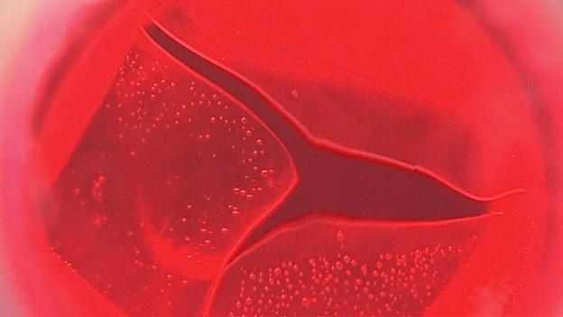 Video «Wachsende Herzklappen für Babys» abspielen