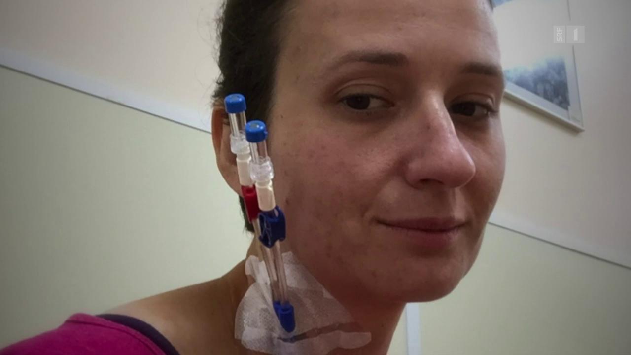 Radikale MS-Therapie: Wie weiter?