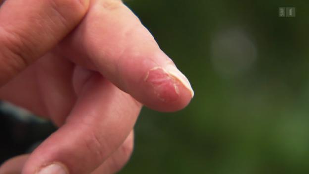 Video «Nachwachsende Fingerglieder – Folienverband statt Operation» abspielen
