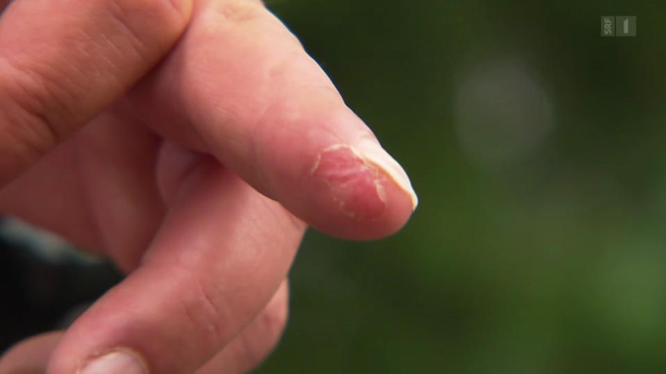Nachwachsende Fingerglieder – Folienverband statt Operation