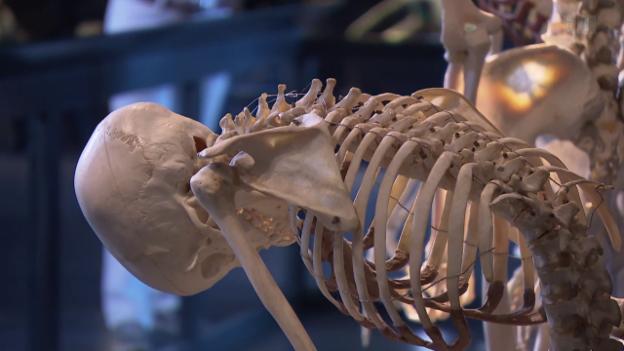 Video «Unspezifische Rückenschmerzen» abspielen