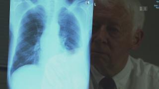 Video «Tuberkulose-Forschung: Für Pharmafirmen zu wenig lukrativ» abspielen