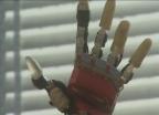Video «Die Hightech-Hand» abspielen