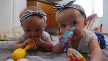 Link öffnet eine Lightbox. Video «Puls Spezial»: Zwillinge – gleiche Gene, gleicher Mensch? abspielen.