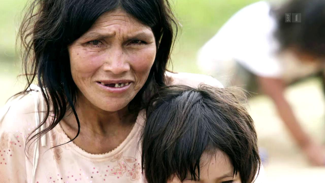 Gesunde Arterien bei Ureinwohner