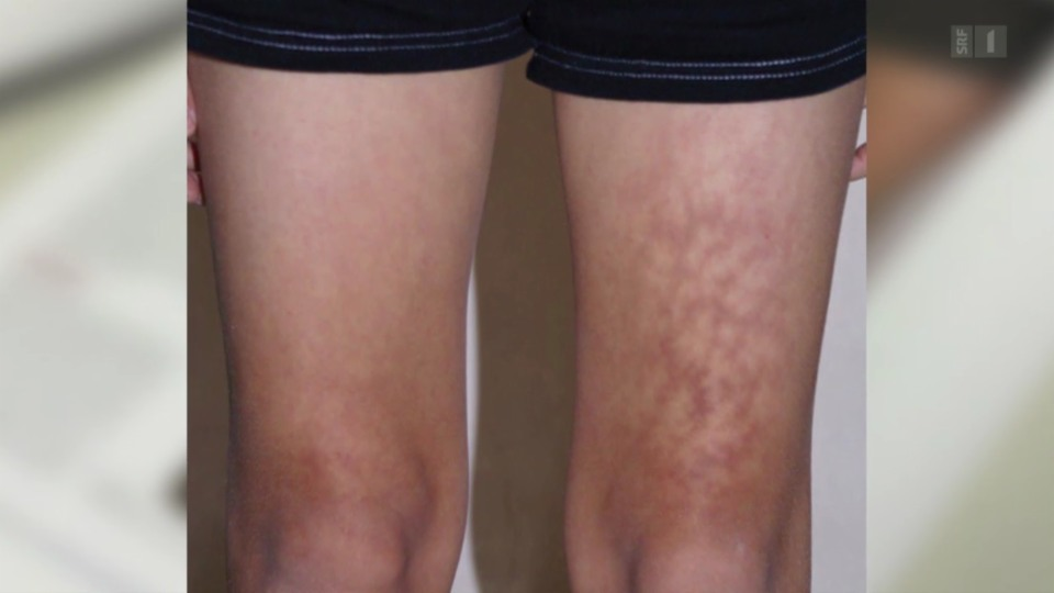 Laptop-Hitze schadet der Haut