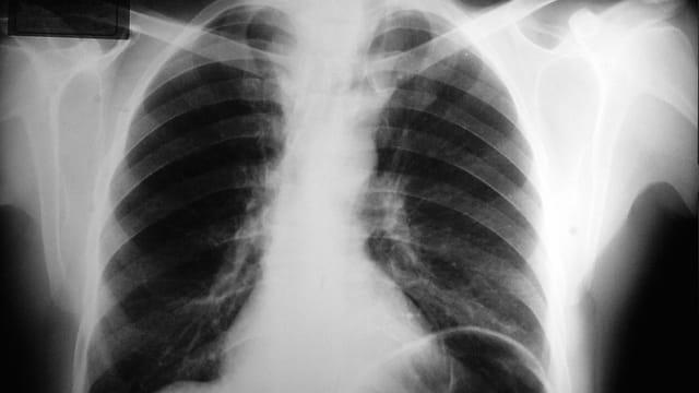 Vernarbte Lunge – Den Spätfolgen von Corona auf der Spur