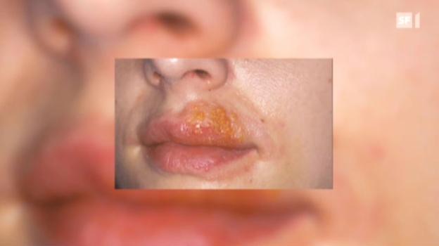 Video «Herpes ist unangenehm - und betrifft fast jeden» abspielen