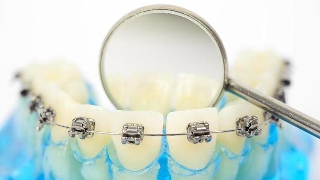 Zahnspange – Schnellere Korrektur dank Infrarotlicht