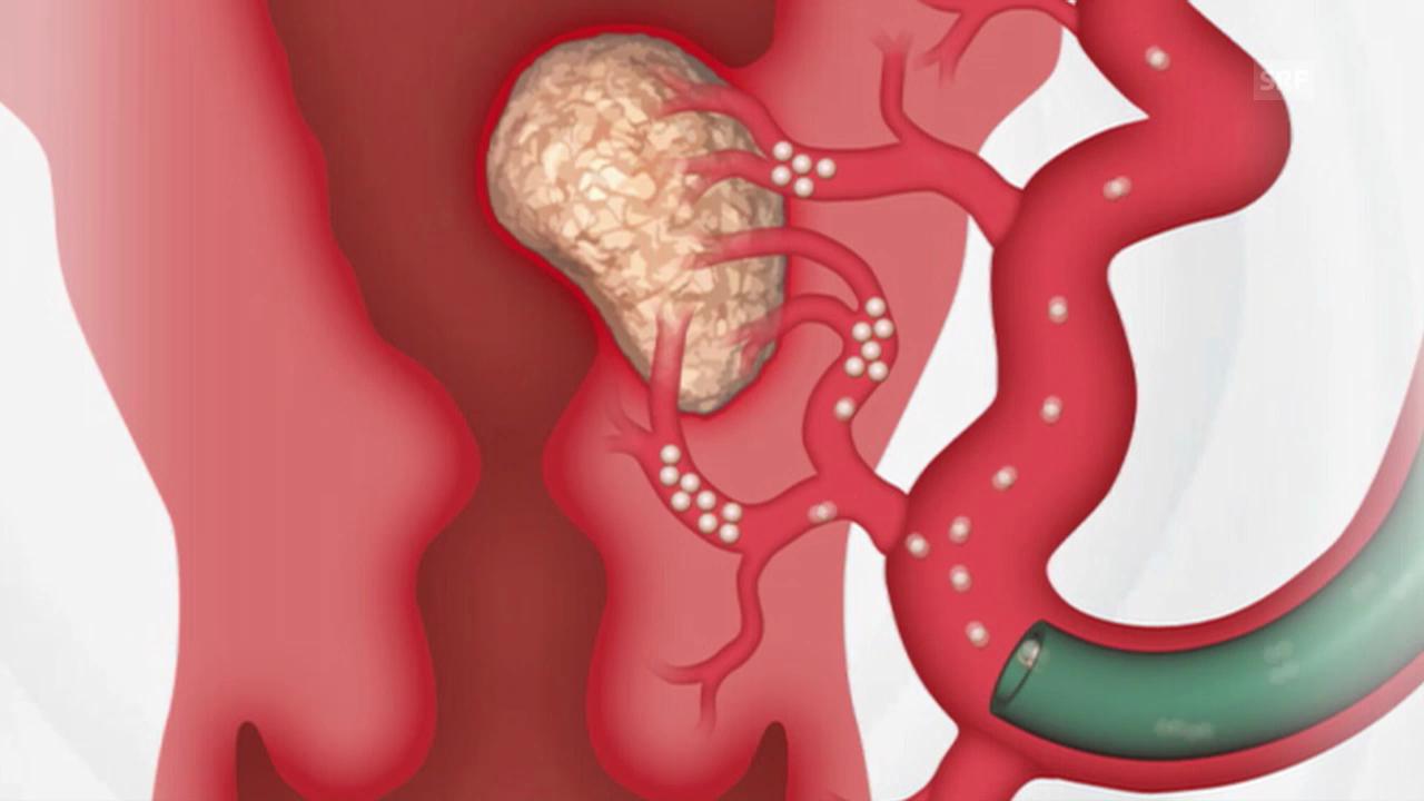 Polypenentfernung gebärmutter