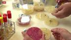 Video «Strategie des Bundes im Kampf gegen Antibiotika-Resistenz» abspielen