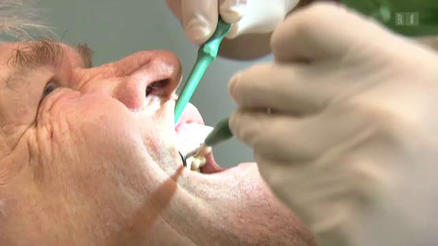 Freiliegende Zahnhälse - Falsches Zähneputzen als Ursache