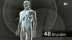 Video «Wie stirbt unser Körper?» abspielen