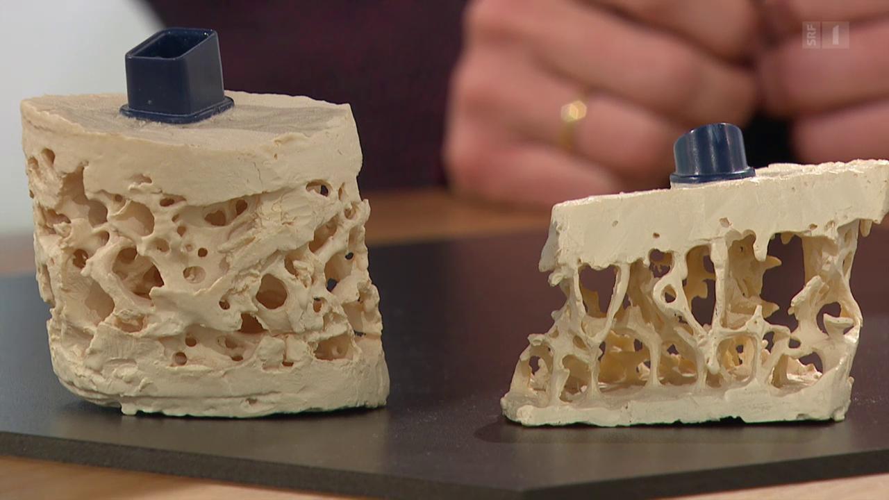 Osteoporose – Den Knochenschwund erkennen und bremsen