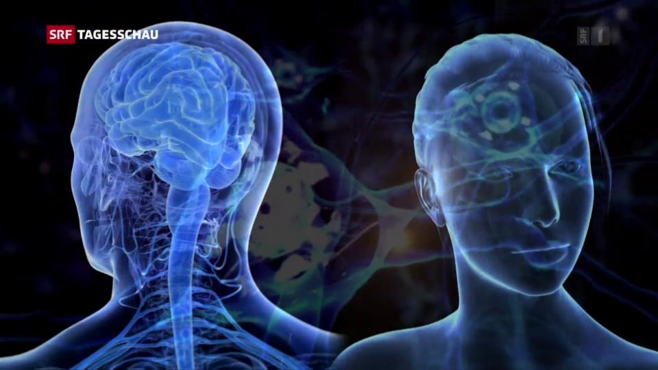 Alzheimer, Infarkt und Co: Frauen reagieren anders