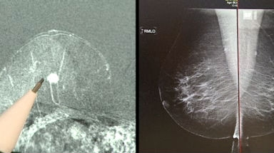 Video «MRI statt Mammografie - Weshalb beim Erkennen von Brustkrebs nicht die beste Methode eingesetzt wird» abspielen