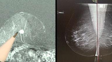 MRI statt Mammografie – Wieso noch nicht im Einsatz?