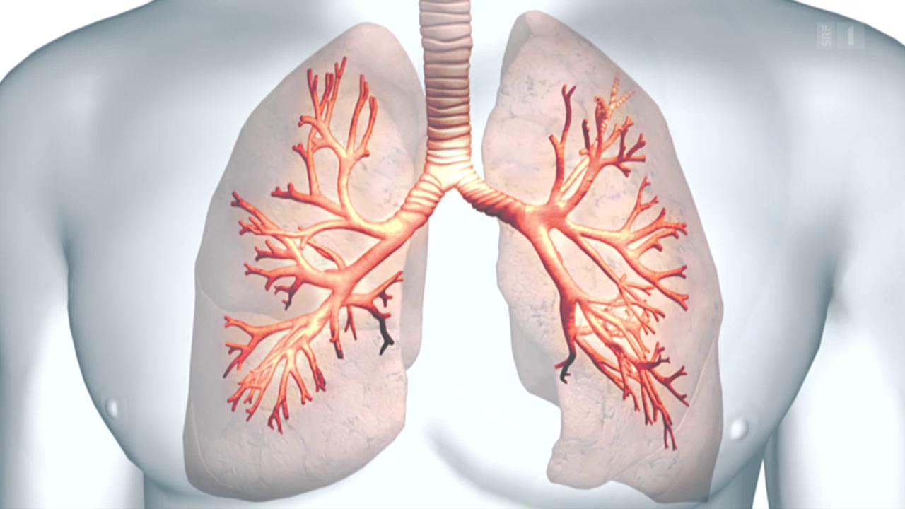 Asthma - Umstrittene Methode soll helfen