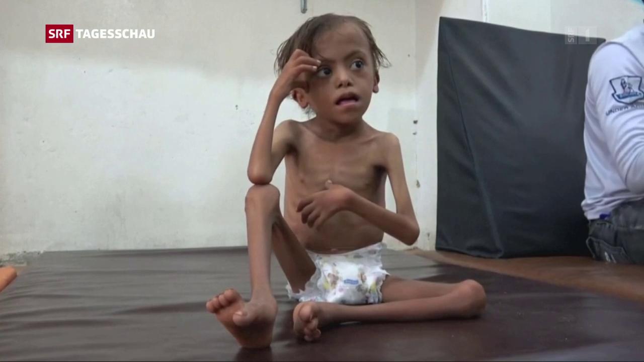 Im Jemen droht erneut eine Hungersnot