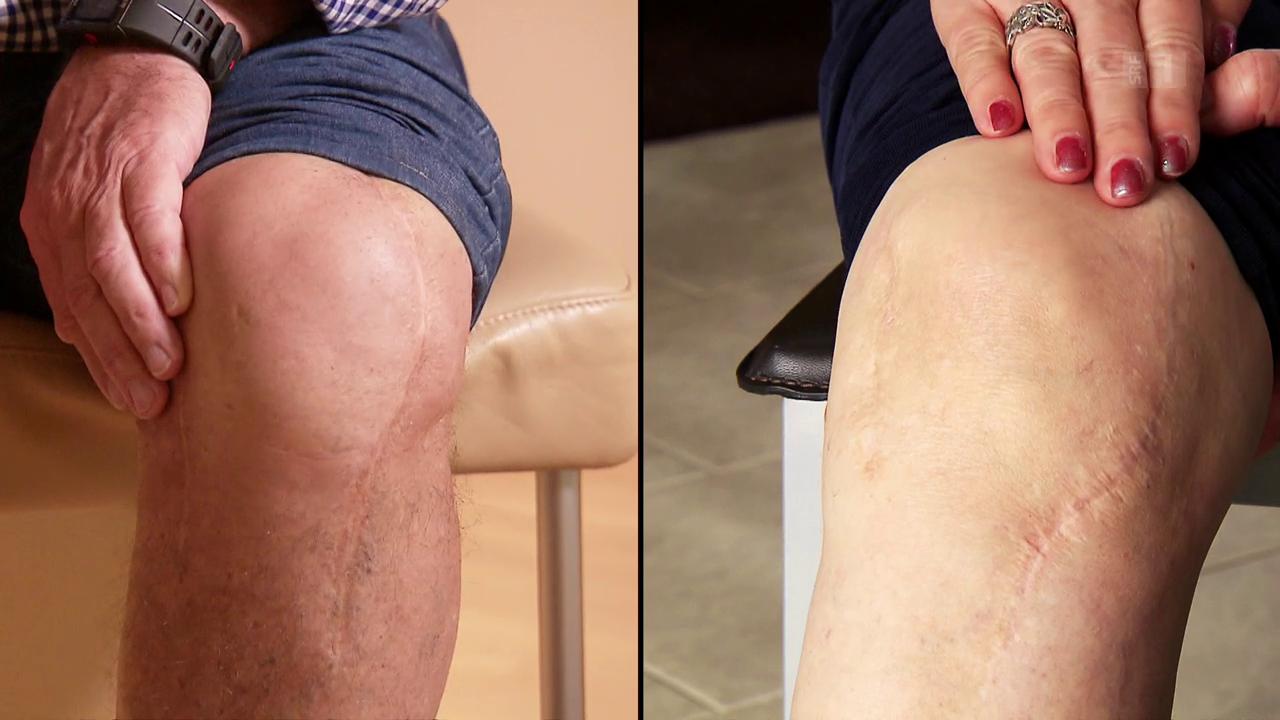 Was bringen personalisierte 3D-Knieprothesen?