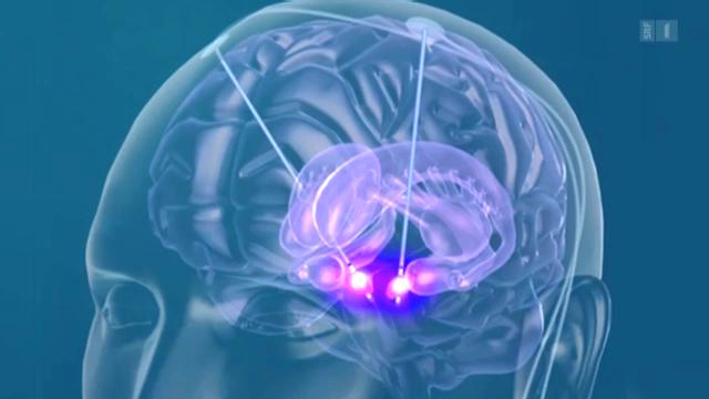 Epilepsie-Schrittmacher jetzt auch in der Schweiz