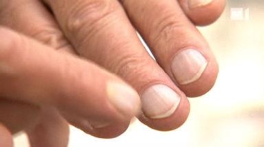 Gesunde Nägel - Was Fingernägel über die Gesundheit verraten