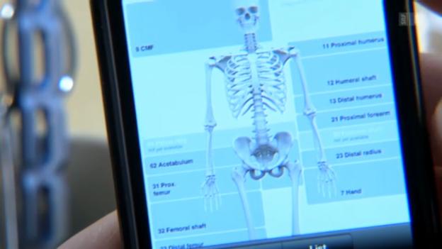 Video «Komplizierter Oberschenkelhalsbruch? Operationen ab iPhone» abspielen