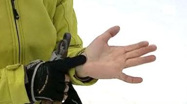 Karpaltunnel-Syndrom - Wann die andauernden Beschwerden am Handgelenk operiert werden sollten