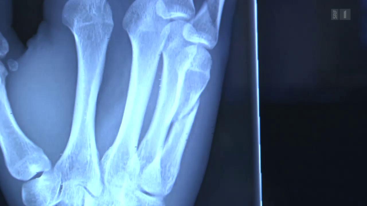 Knochenbruch – Heilung mit Kunststoff und Licht