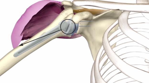 Video «Inverse Schulterprothesen» abspielen