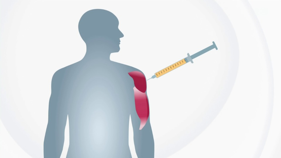 Nebenwirkungen: Das passiert im Körper