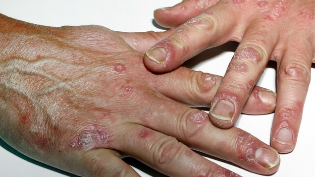 Psoriasis – Die wirksamste Therapie kriegen nur wenige