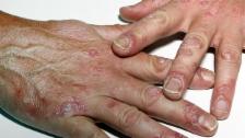 Video «Psoriasis – Die wirksamste Therapie kriegen nur wenige» abspielen